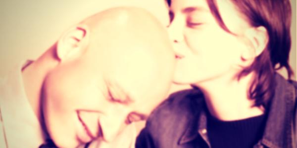 Alopecia altrimenti detta calvizie